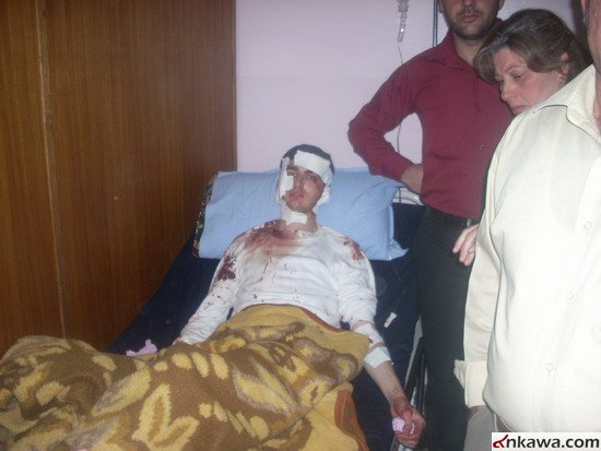 طلبة بغديدا الراقدين في مستشفى الحمدانية يطالبون بالتحقيق العاجل في موضوع استهدافهم والكشف عن المجرمين 621