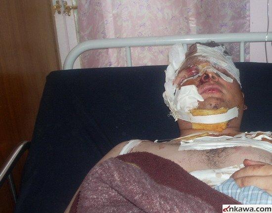 طلبة بغديدا الراقدين في مستشفى الحمدانية يطالبون بالتحقيق العاجل في موضوع استهدافهم والكشف عن المجرمين 721