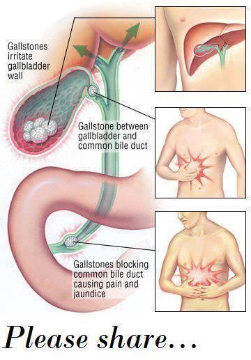 Gall Stones, Liver, Kidney stones Flushing  Stones10