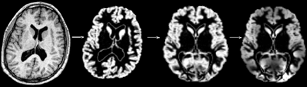 The Effect of Antipsychotic Treatment on Cortical Gray Matter Changes in Schizophrenia: Does the Class Matter?  White-10