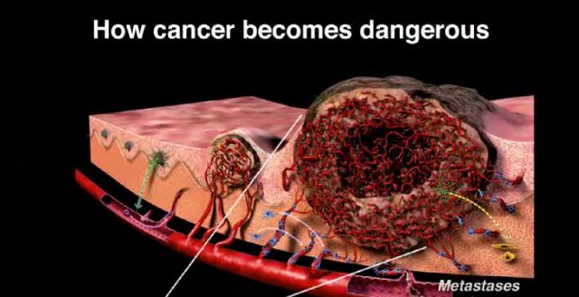 Pronadjen lek za sve vrste raka - Page 2 12894410