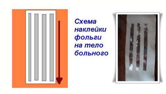 Лечение алюминиевой фольгой Iuzzae24