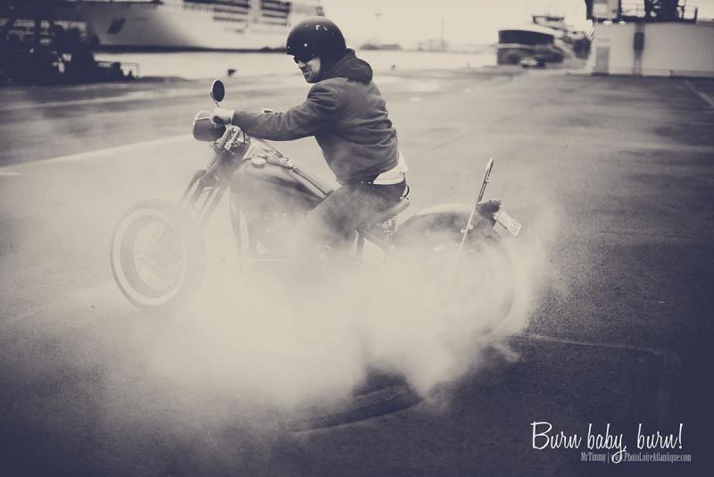 Les burns  Burn-b10