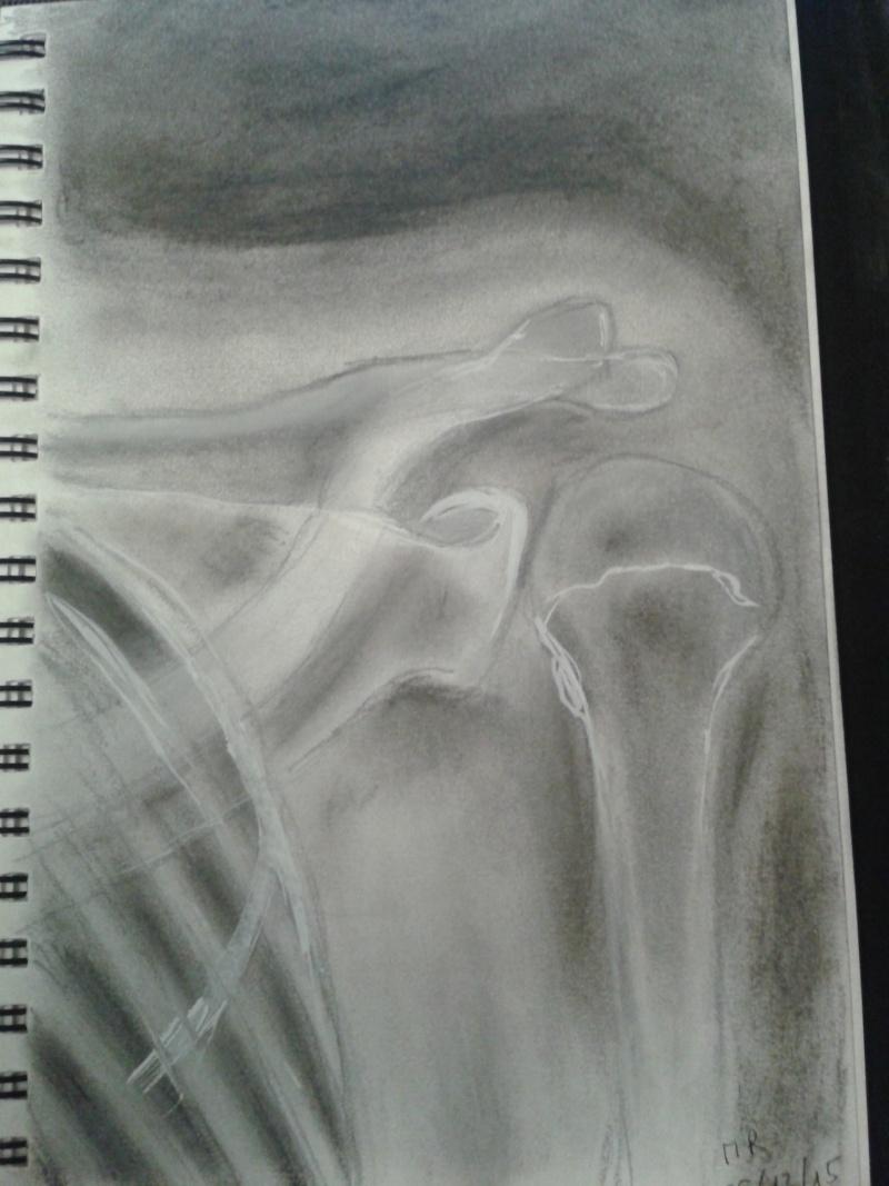 Galerie d'Art/Dessins/Œuvres  - Page 2 Xray10