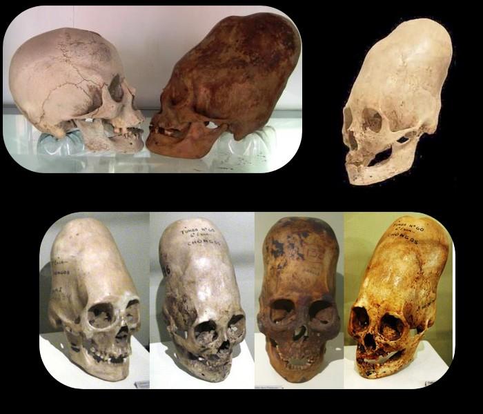 L'analyse ADN des crânes de Paracas prouve qu'ils ne sont pas Humains Sans_788