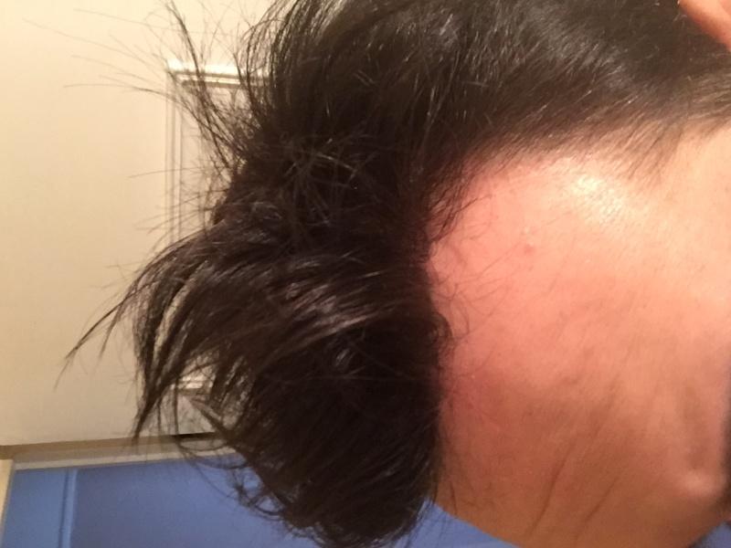 Complément capillaire à 28 Ans : images nano peau en institut Img_0710
