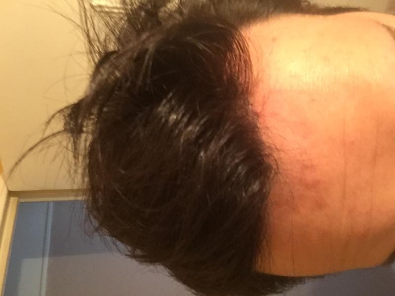 Complément capillaire à 28 Ans : images nano peau en institut Img_0712
