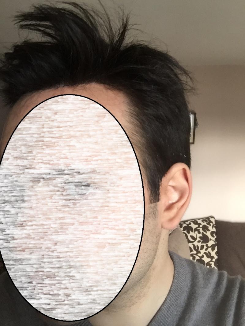 Complément capillaire à 28 Ans : images nano peau en institut V210