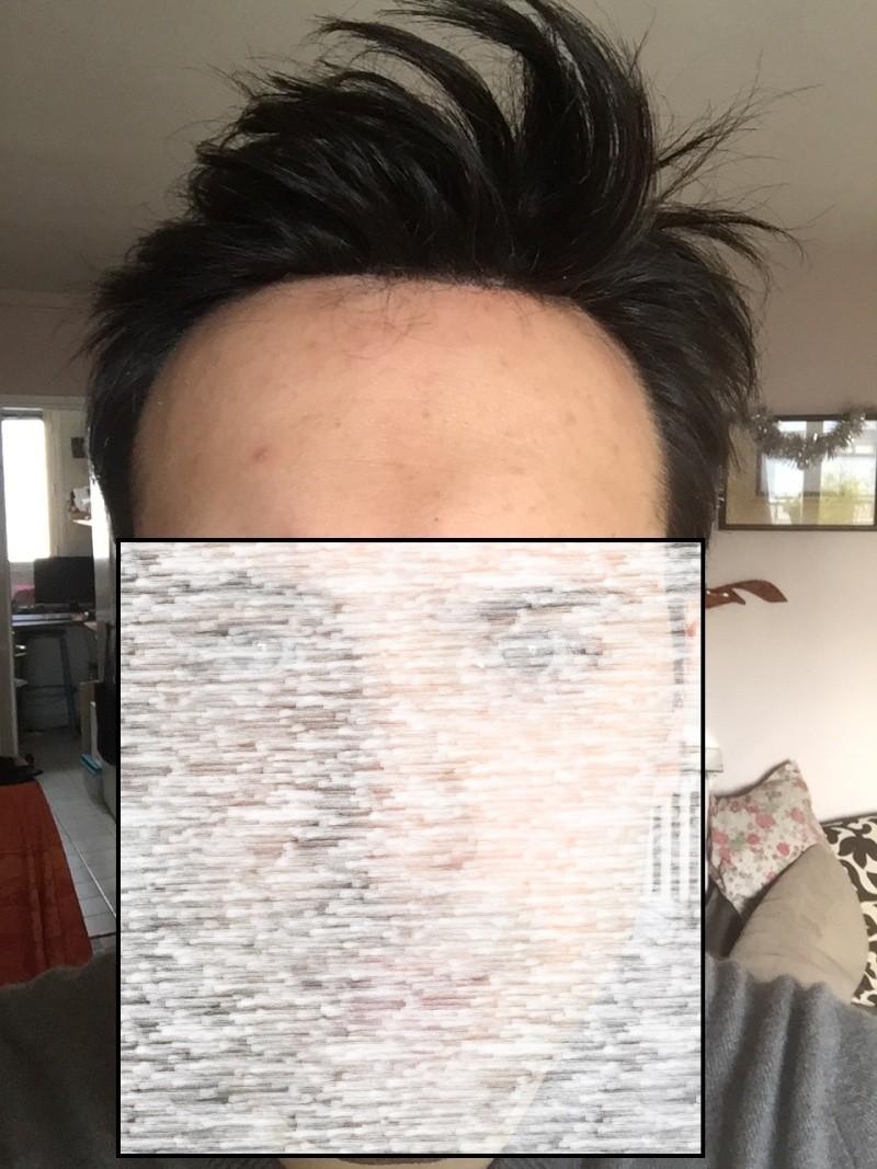 Complément capillaire à 28 Ans : images nano peau en institut V410