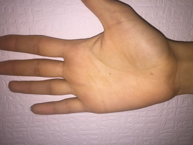 Can you read my hand please, especially my life line. Thank you! Image18