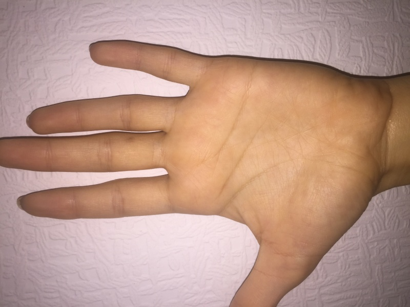 Can you read my hand please, especially my life line. Thank you! Image20