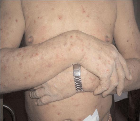 6eme-dermato-Prurigo Fig1-n10