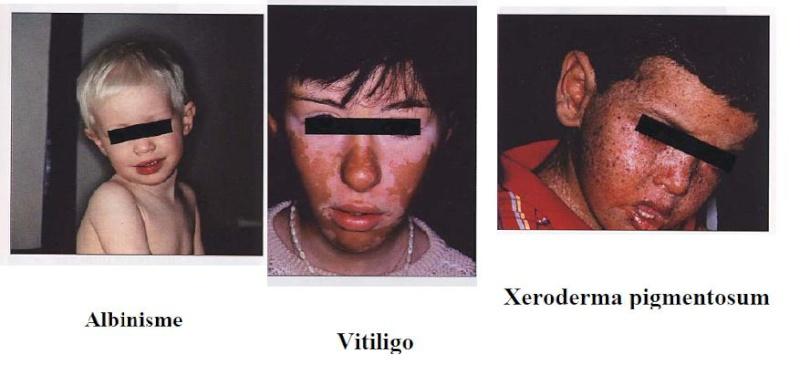 semiologie du visage! Vvvvvv10