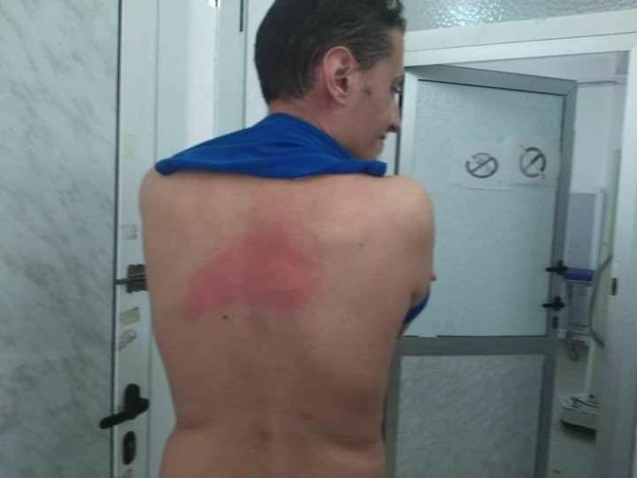 votre agression a été l'élément principal de mobilisation de la marche historique du livre le 22 juillet 2017 à Aokas. Ghilas Ainouche 10789