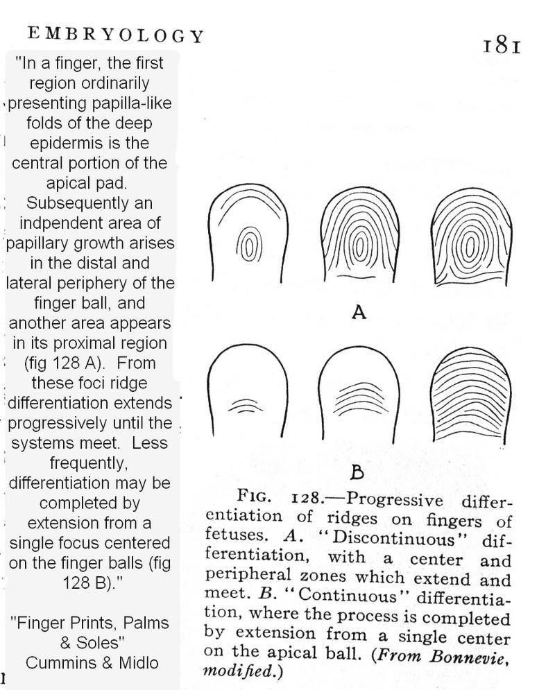 X - WALT DISNEY - One of his fingerprints shows an unusual characteristic! - Page 9 Cummin10