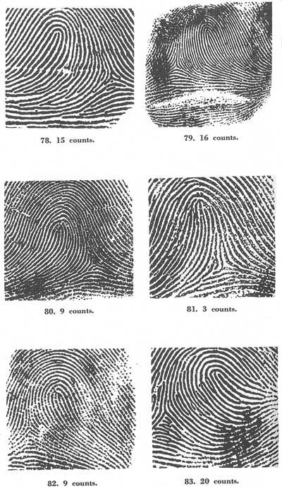 X - WALT DISNEY - One of his fingerprints shows an unusual characteristic! - Page 23 Fig07810