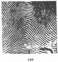 X - WALT DISNEY - One of his fingerprints shows an unusual characteristic! - Page 8 Fig14911