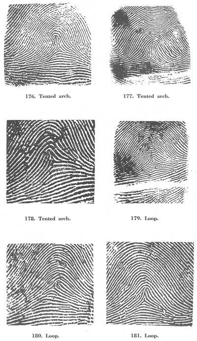 X - WALT DISNEY - One of his fingerprints shows an unusual characteristic! - Page 19 Fig17612