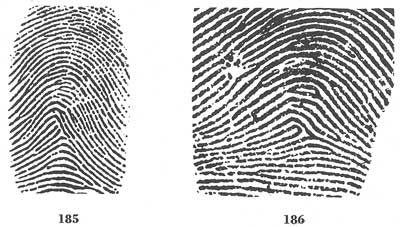 X - WALT DISNEY - One of his fingerprints shows an unusual characteristic! - Page 13 Fig18510