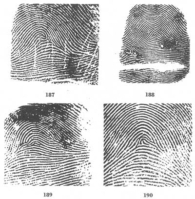 X - WALT DISNEY - One of his fingerprints shows an unusual characteristic! - Page 10 Fig18710