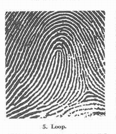 X - WALT DISNEY - One of his fingerprints shows an unusual characteristic! - Page 23 Fig_510