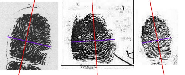 X - WALT DISNEY - One of his fingerprints shows an unusual characteristic! - Page 25 Trirad13
