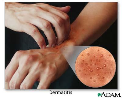 389891887 [img] موسوعه الامراض الاعراض والعلاج كامله Dermat10