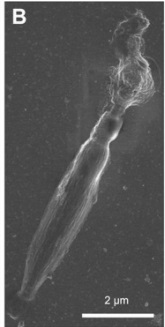 A dinoflagellate protist which has eyes like in vertebrates, and ballistic multi-barrel guns for taking out prey. By design, or evolution? Cnidar16