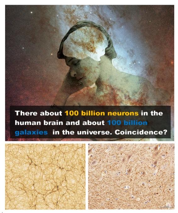 The Strange Similarity of Neuron and Galaxy Networks Sem_tz58