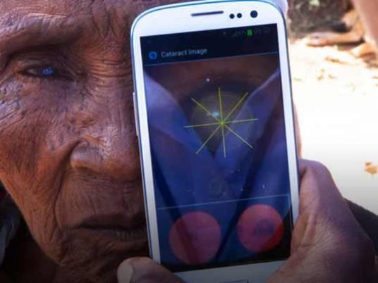 تطبيق جديد على الهواتف الذكية لعلاج أمراض العين Peek-e11