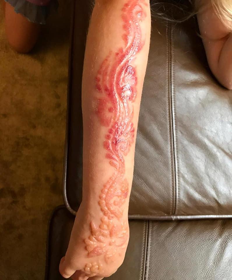 Henné tatouage à risque 210