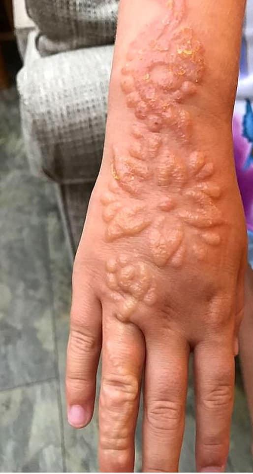 Henné tatouage à risque 310