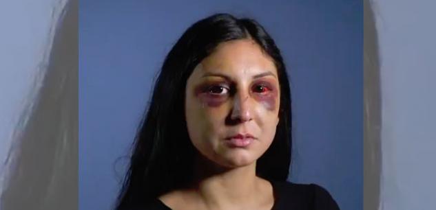 Une jeune femme accuse des policiers de l'avoir « tabassée » lors de son interpellation F2844a10