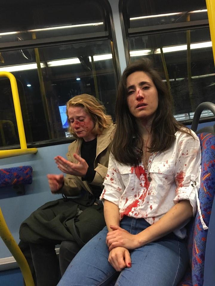 Londres, Melania et Chris, deux lesbiennes en couple agressées par des hommes qui voulaient les forcer à s'embrasser Mps10