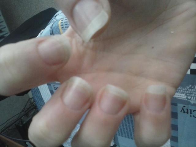 Mon itinéraire de grande rongeuse d'ongles Main_d10