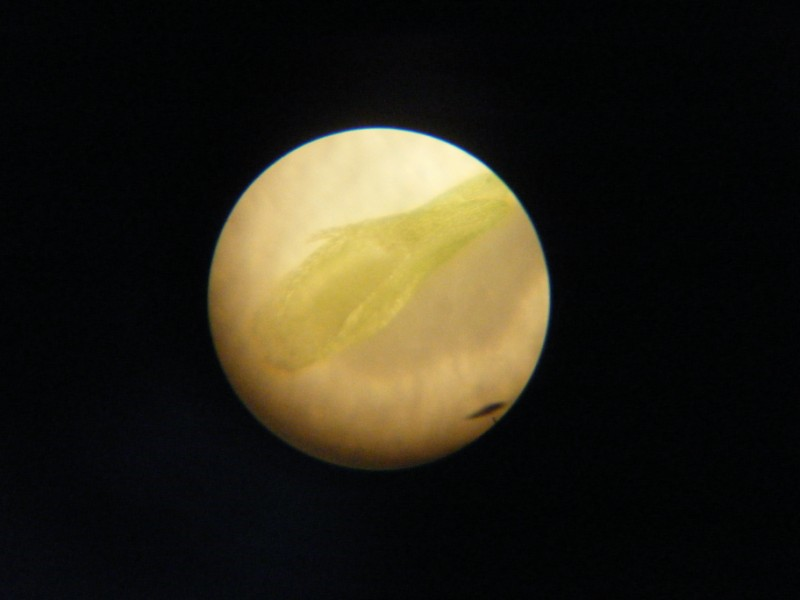vue au microscope d'une feuille d'un bebe drosera aliciae Dscf1211