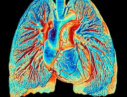 Journée mondiale de l'hypertension artérielle pulmonaire : une espérance de vie très «amenuisée  » Images10