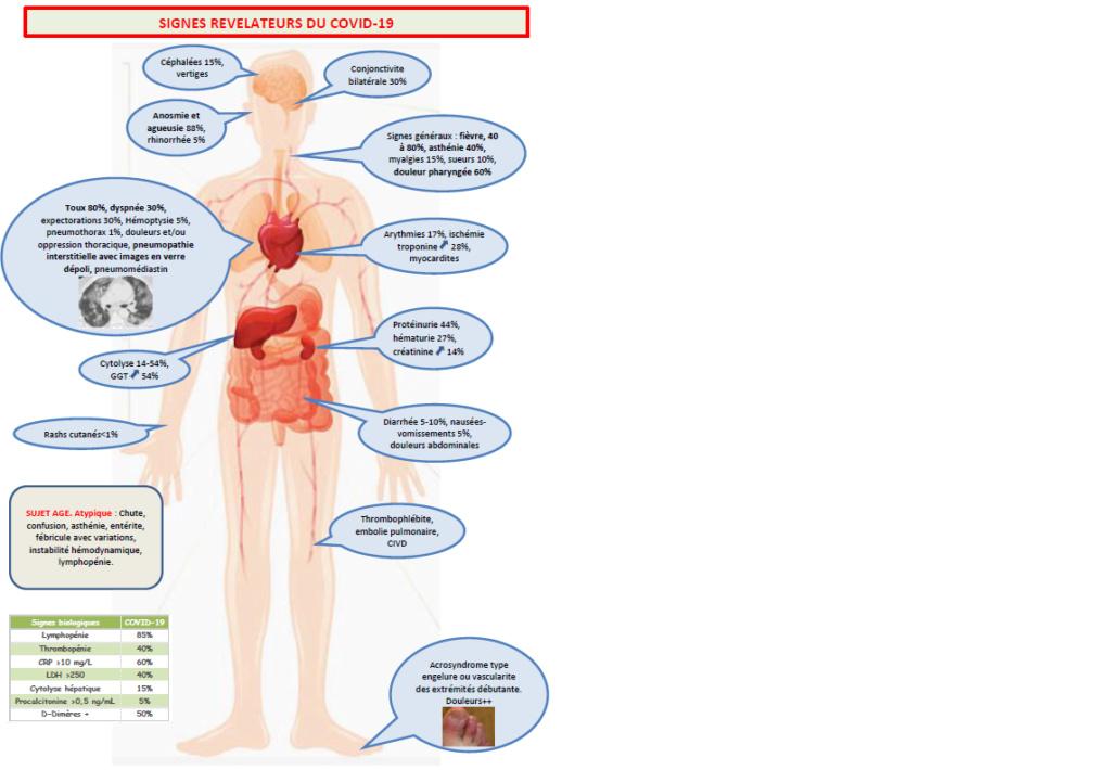 signes cliniques covid Signes10