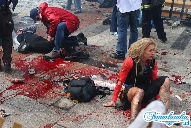 ¿Explosión o atentado? Boston USA - Página 2 Herido10