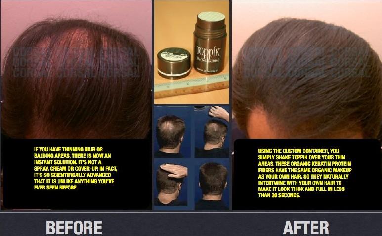 Toppik... Hair Concealer Toppik10