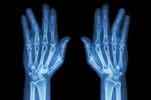 تشوّه الاصابع Fingers deformation 11145410