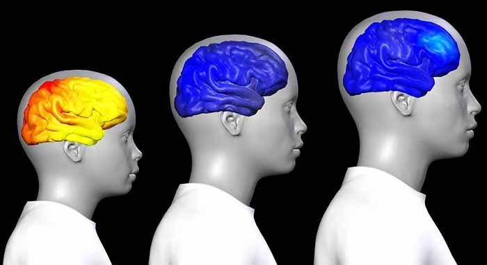 كيف يتغير الدماغ عند البلوغ وخلال فترة المراهقة ؟ Adoles10