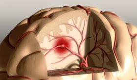 Antipsychotics & Risk of Stroke Stroke10
