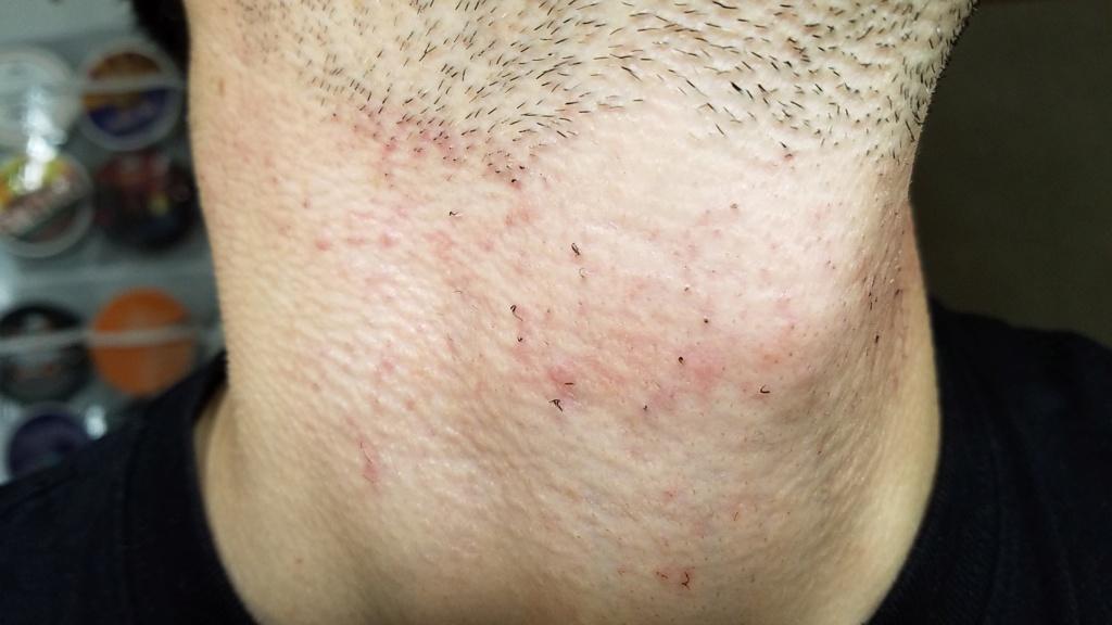L'épilation définitive au laser contre les poils incarnés, voici mon expérience 20191110
