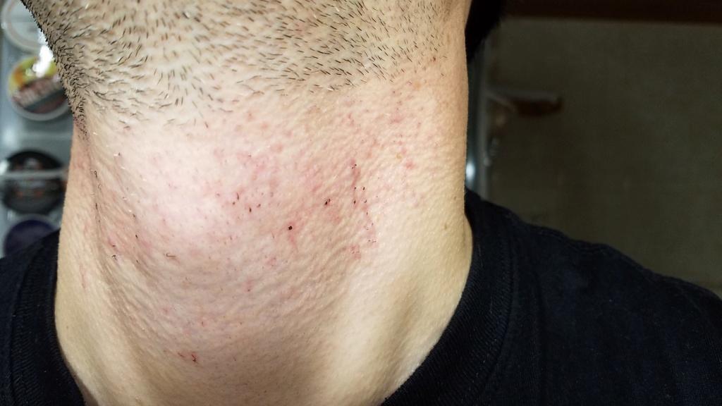 L'épilation définitive au laser contre les poils incarnés, voici mon expérience 20191111