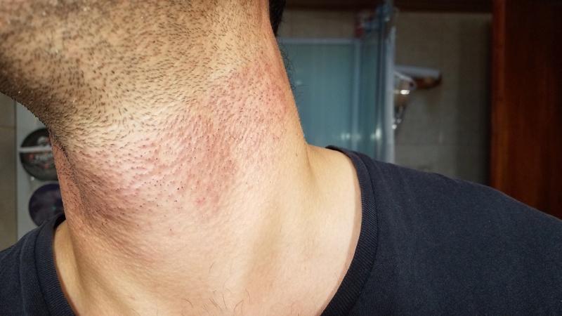 L'épilation définitive au laser contre les poils incarnés, voici mon expérience 72481610