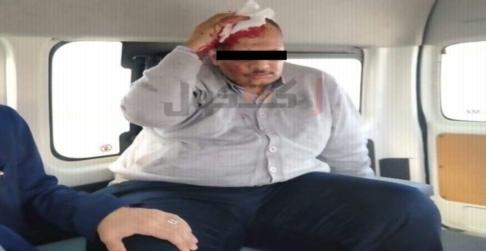 بنزين ومسدس ودماء.. طالب يعتدي على استاذ بالاسكندرية ويضربه ضرباً مبرحاً 02520
