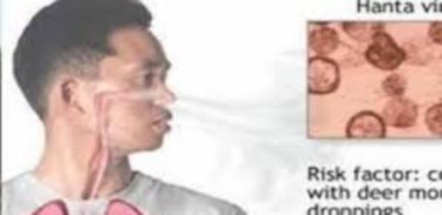 """الصين تعلن عن فيروس جديد يدعى """"هانتا"""" يتسبب فى وفاة شخص من مقاطعة يونان 0856"""