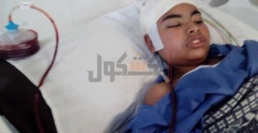 """بعد سقوط """"ديسك"""" على رأسه .. والدة طالب مدرسة الفيصلية: إبنى مش فاكرني 12203"""