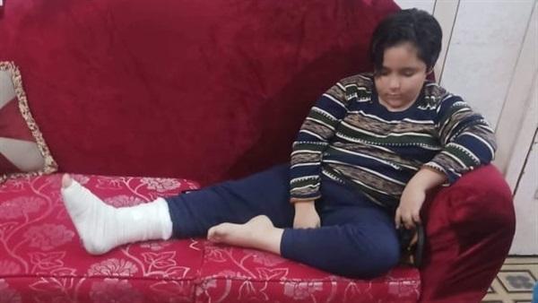 ولى أمر يتهم معلمة بكسر قدم ابنه في خامسة ابتدائي ويطالب الوزير بفصلها.. والطالب: ضربتنى زى الحيوانات 79311